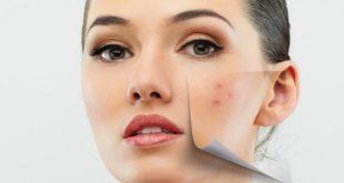 علاج حب الشباب , كيفيه التخلص من اثار حبوب الوجه