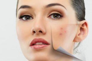 صورة علاج حب الشباب , كيفيه التخلص من اثار حبوب الوجه