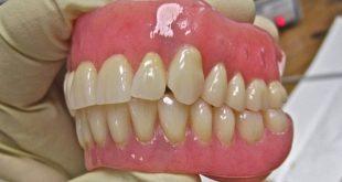 صورة طقم اسنان , كيفية تنظيف طقم الاسنان المتحرك