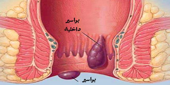 صور علاج البواسير , كيفية علاج البواسير الخارجية