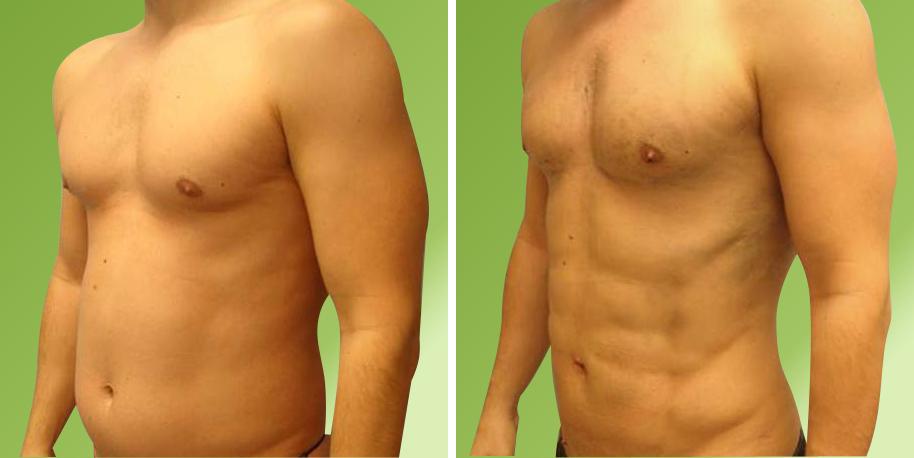 صورة عملية نحت الجسم , مالفرق بين عمليات شفط الدهون ونحت الجسم والمزايا والضرر