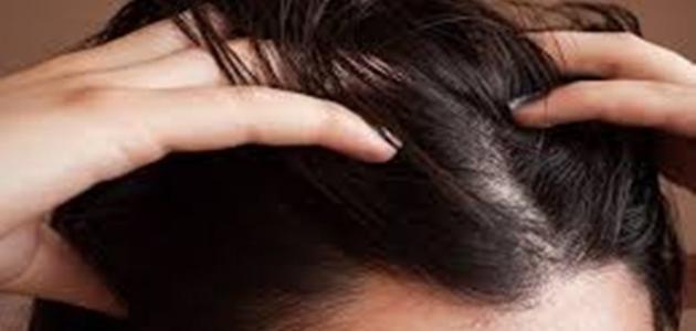 صورة الشعر الدهني والزيوت , تعرف على انواع الزيوت و الشعر الدهني