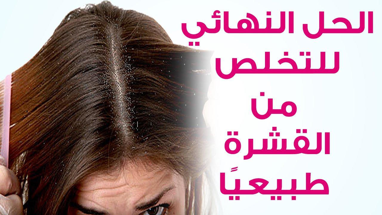 صورة قشره الشعر , افضل الطرق للتخلص من القشره