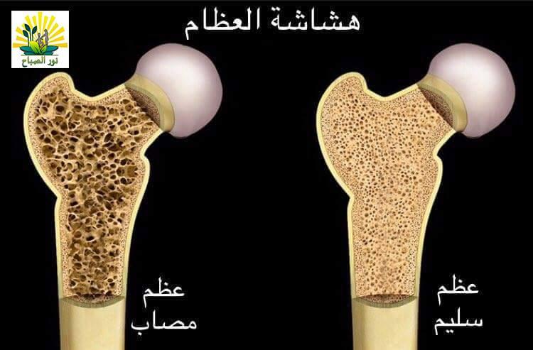 صورة هشاشه العظام , هشاشه العظام اسبابها وعلاجها
