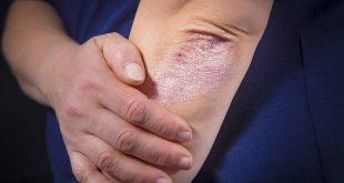 صورة علاج الصدفية مجرب ,مرض جلدى علاجة عندى