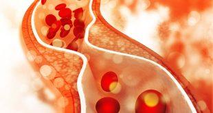 صورة اعراض الدهون الثلاثية , دهون ثلاثية امراض لا حصر لها