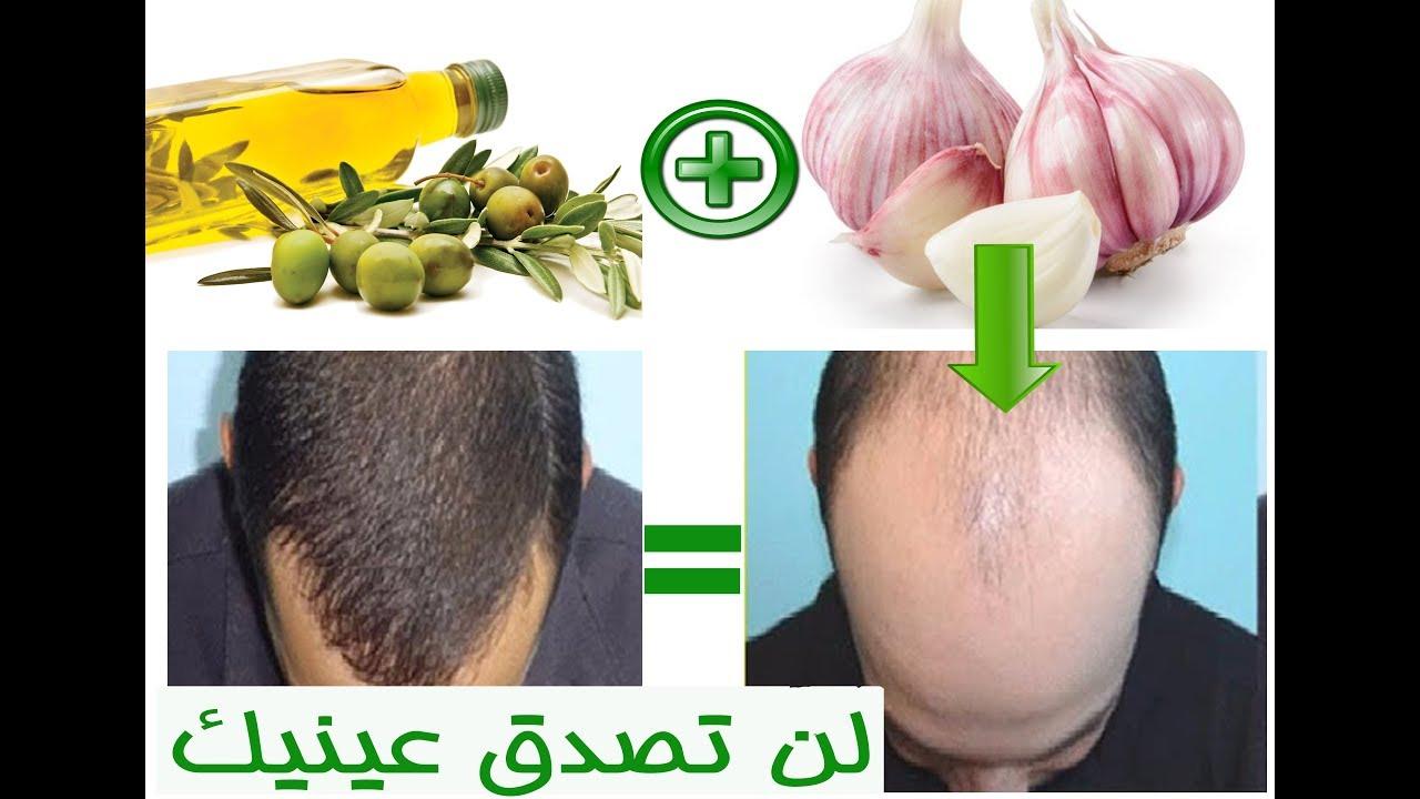 صورة احسن علاج لتساقط الشعر ,علاج طبيعى لشعر افضل