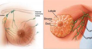 صورة الكشف المبكر يحمى صحتك, اعراض ورم الثدي الحميد