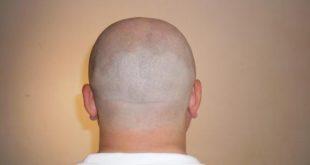 فوائد حلاقة الشعر بالموس للرجال